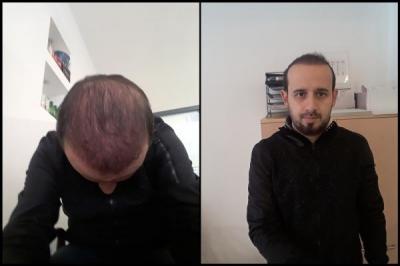 hair-transplant-in-turkey-istanbul (22)