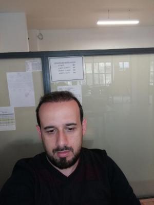 hair-transplant-in-turkey-istanbul (25)