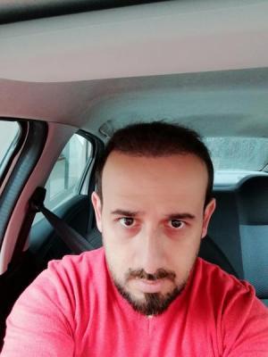 hair-transplant-in-turkey-istanbul (26)