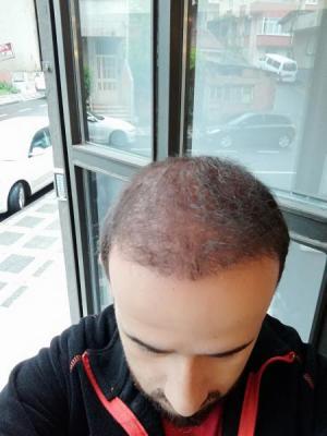hair-transplant-in-turkey-istanbul (27)