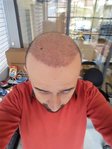 hair-transplant-in-turkey-istanbul (3)