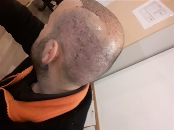 hair-transplant-in-turkey-istanbul (4)