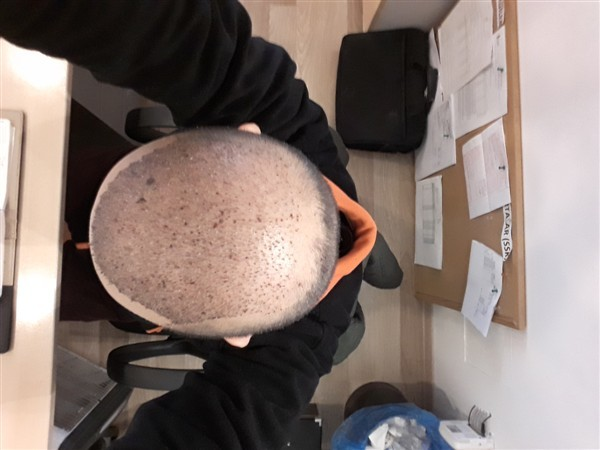 hair-transplant-in-turkey-istanbul (6)