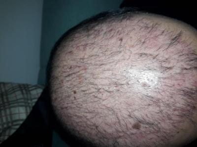 hair-transplant-in-turkey-istanbul (7)