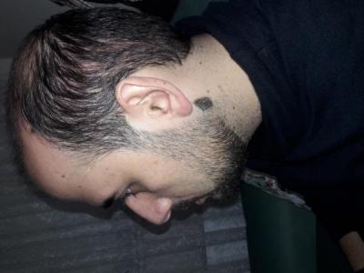 hair-transplant-in-turkey-istanbul (8)