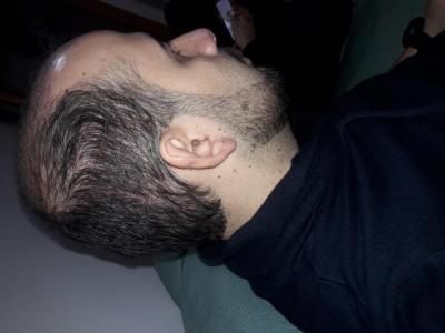 hair-transplant-in-turkey-istanbul (9)