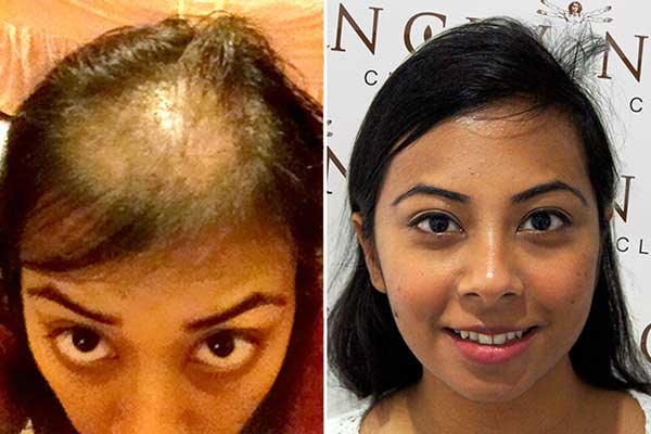 hair-transplant-in-women-results