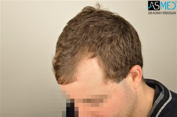 hair-transplant-istanbul (1)