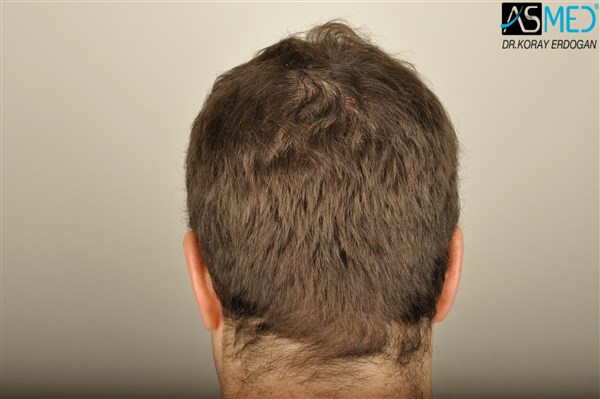 hair-transplant-istanbul (10)