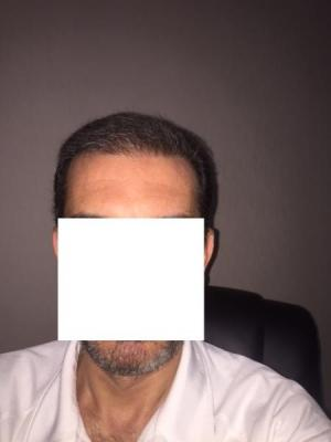 hair-transplant-istanbul (11)