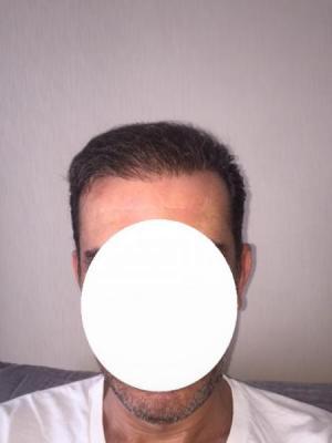hair-transplant-istanbul (13)