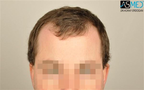 hair-transplant-istanbul (14)