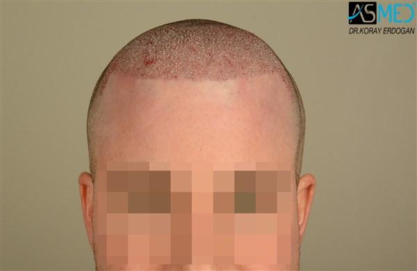 hair-transplant-istanbul (15)