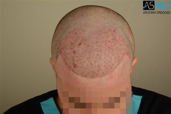 hair-transplant-istanbul (18)
