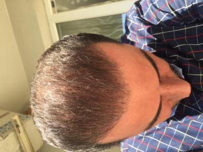hair-transplant-istanbul (19)