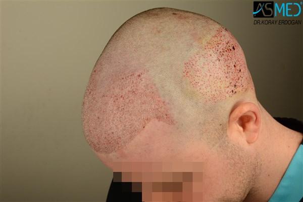 hair-transplant-istanbul (2)