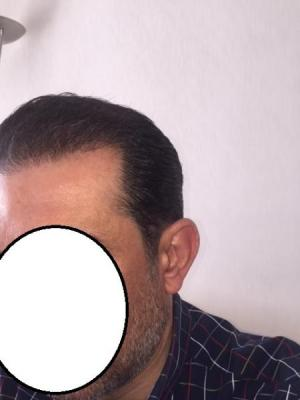 hair-transplant-istanbul (20)