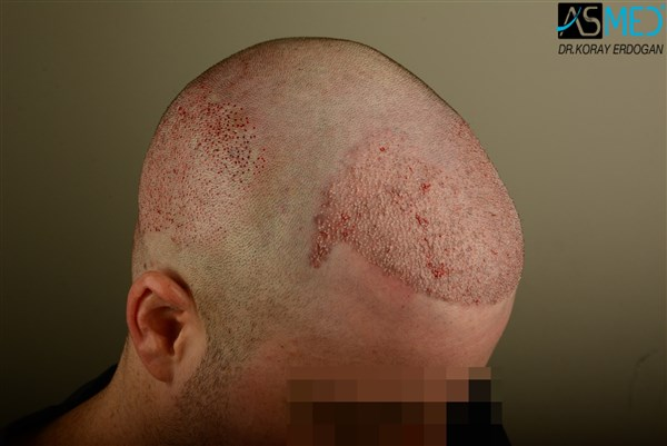 hair-transplant-istanbul (21)