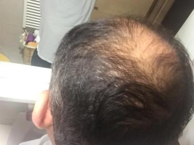 hair-transplant-istanbul (22)