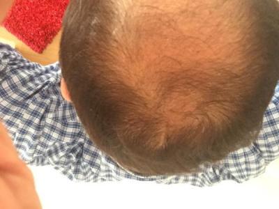 hair-transplant-istanbul (23)