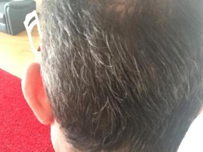 hair-transplant-istanbul (24)