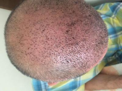 hair-transplant-istanbul (3)