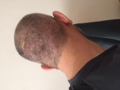 hair-transplant-istanbul (4)