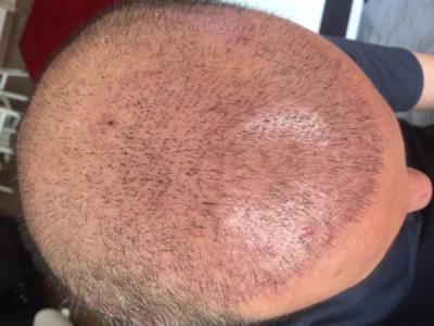 hair-transplant-istanbul (5)