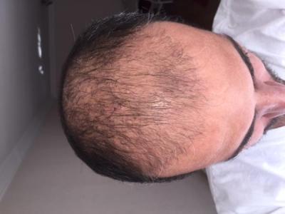 hair-transplant-istanbul (6)