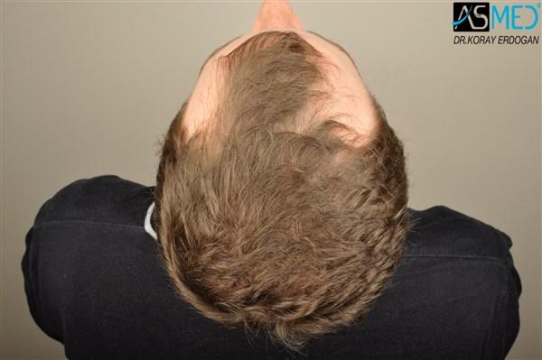 hair-transplant-istanbul (7)