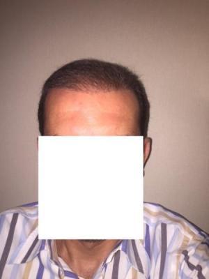 hair-transplant-istanbul (9)