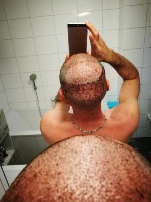 hair-transplant-istanbul-arenamed (3)