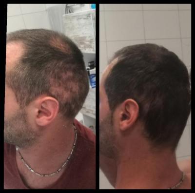 hair-transplant-istanbul-arenamed (4)