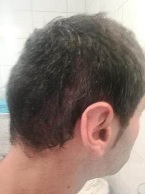 hair-transplant-istanbul-arenamed (6)