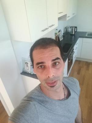 hair-transplant-istanbul-arenamed (7)