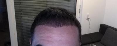 hair-transplant-istanbul-arenamed (8)