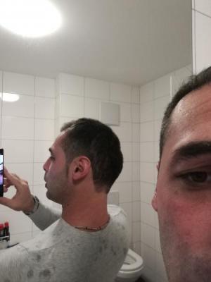 hair-transplant-istanbul-arenamed (9)