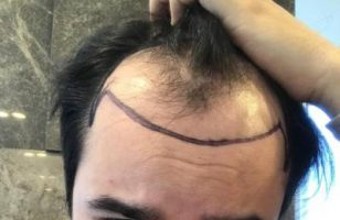 hair-transplant-price-turkey (2)