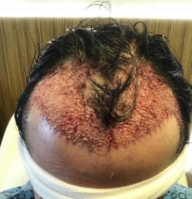 hair-transplant-price-turkey (5)