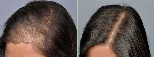 hair-transplant-results-women
