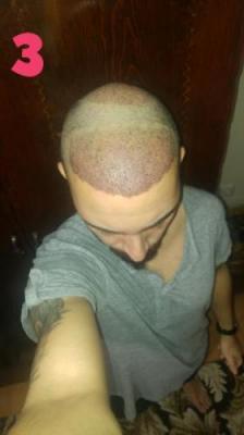hair-transplant-turkey-istanbul (10)
