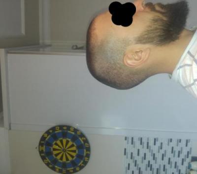 hair-transplant-turkey-istanbul (11)