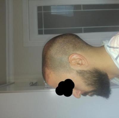 hair-transplant-turkey-istanbul (12)