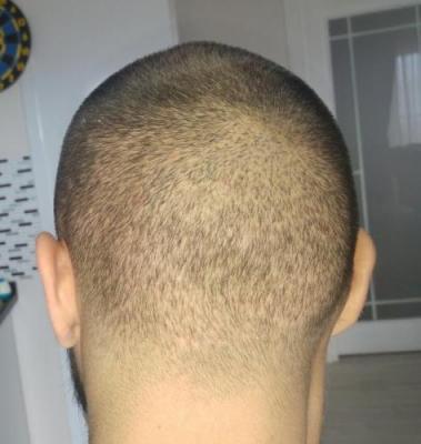 hair-transplant-turkey-istanbul (13)