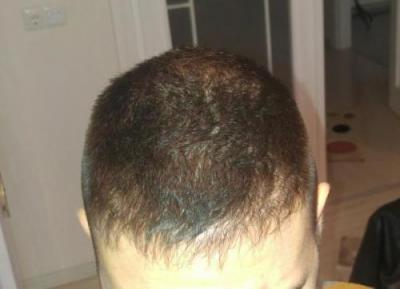 hair-transplant-turkey-istanbul (16)