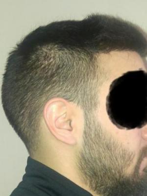 hair-transplant-turkey-istanbul (17)