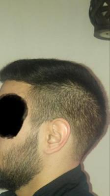 hair-transplant-turkey-istanbul (18)