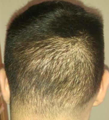 hair-transplant-turkey-istanbul (19)