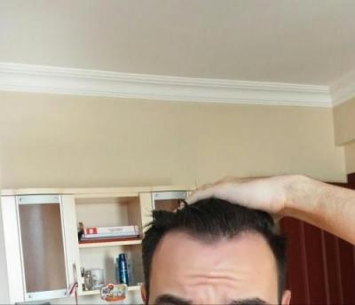 hair-transplant-turkey-istanbul (2)