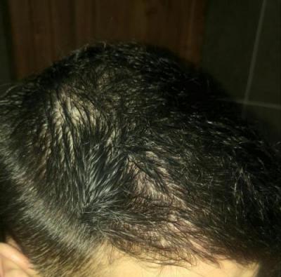 hair-transplant-turkey-istanbul (21)